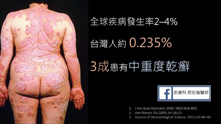 乾癬發生率