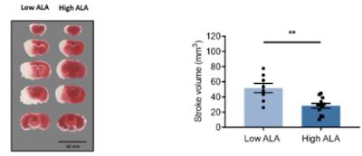 αリノレン酸と脳梗塞サイズ