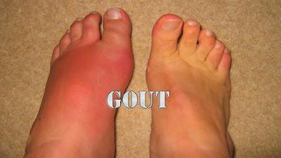 Pengobatan dan Pencegahan Gout