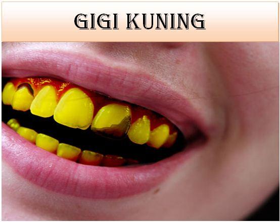 Gigi Kuning, Plak Gigi, Penyebab Gigi Kuning, Kuman Gigi