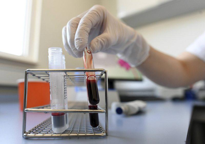 Inyectarán plasma de personas recuperadas en pacientes críticos de Covid-19