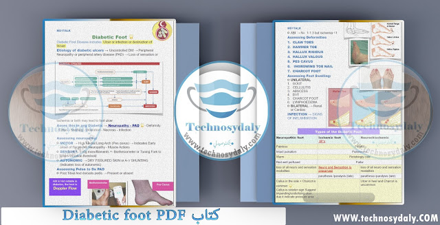 كتاب Diabetic foot PDF