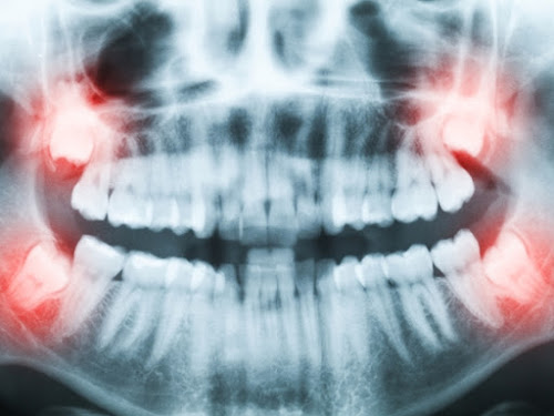 impacted third molar
