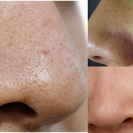 home-remedies-for-blackheads