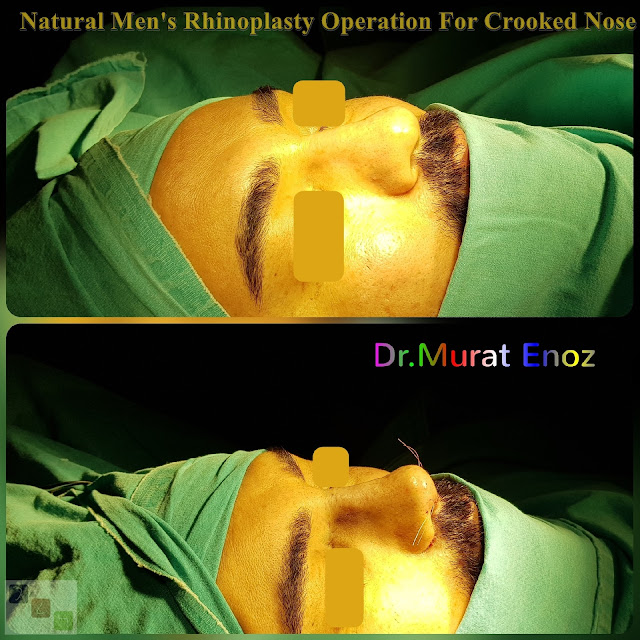 Natural Men's Nose Aesthetic Operation For Crooked Nose - Rhinoplasty For Men Istanbul - nose job,Natural rhinoplasty in Istanbul,Natural looking nasal aesthetic surgery,nose reshaping,