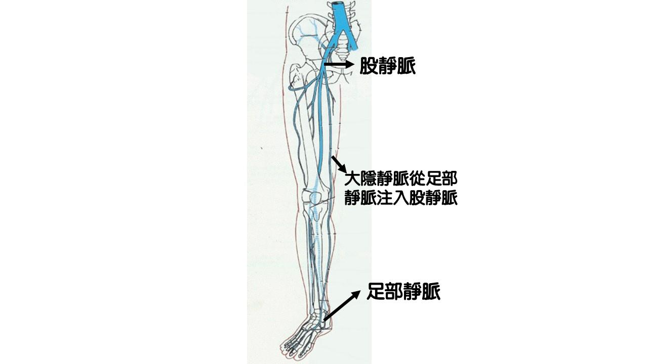 靜脈曲張治療方式:微創靜脈腔內雷射閉合手術|許原彰醫師