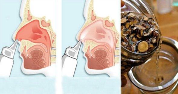 Apa miraculoasa pentru irigatii nazale: Spune adio alergiilor!