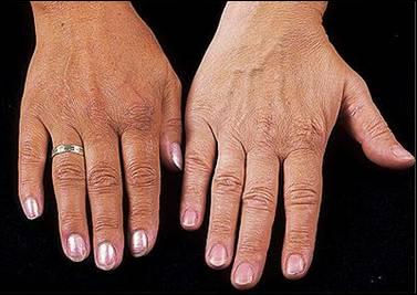 Hemochromatosis, Iron Overload, Excess Iron in The Body