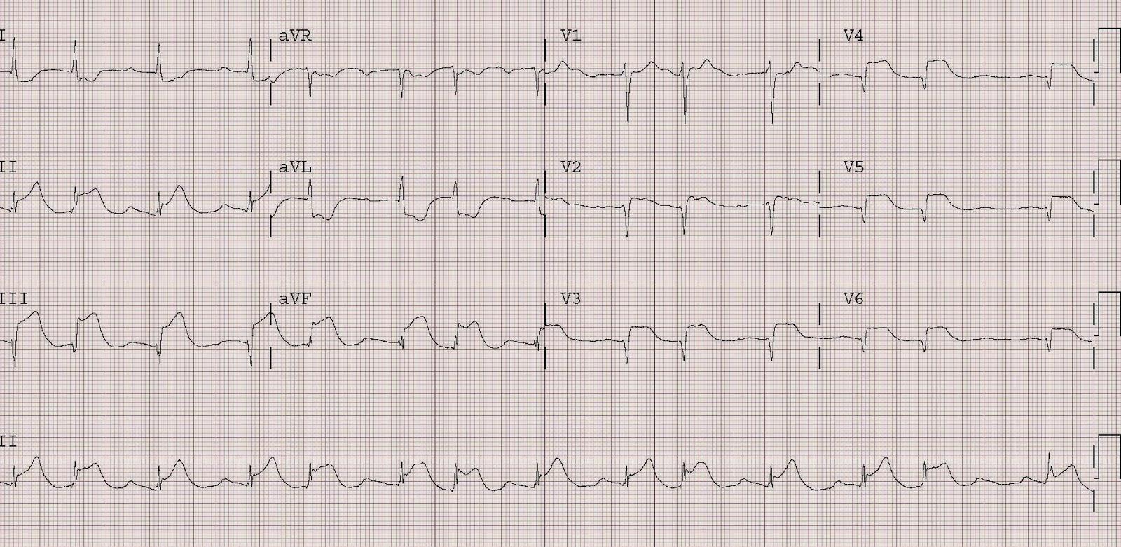 Dr Smith S Ecg Blog Cardiac Arrest Ventricular