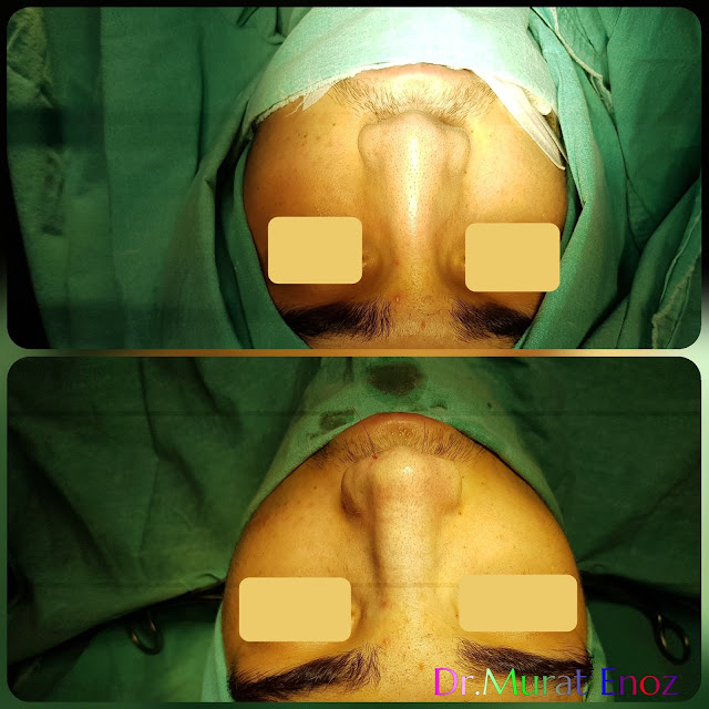Male thick skinned rhinoplasty, Nose job for men Istanbul Turkey