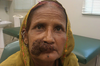 Squamous cell carcinoma : Development. Symptoms, And Treatment