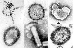 Top 10 Deadliest Viruses Over Earth