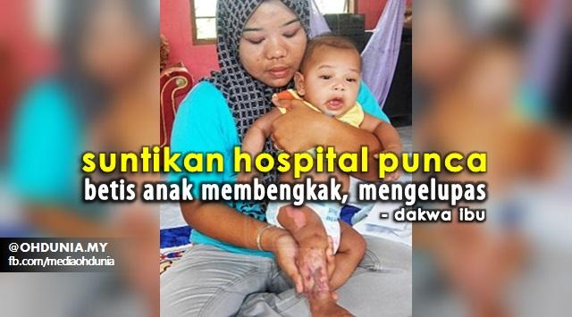 Ibu Dakwa Suntikan Hospital Punca Betis Anak Membengkak, Mengelupas