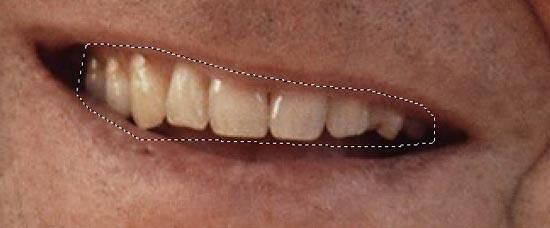 Menyeleksi area gigi di Photoshop