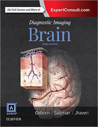 Chẩn đoán hình ảnh Não 3e