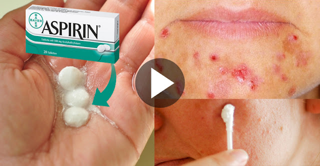 Wow, See How To Remove Acne, Pimples, And Scars With The Help Of Aspirin!