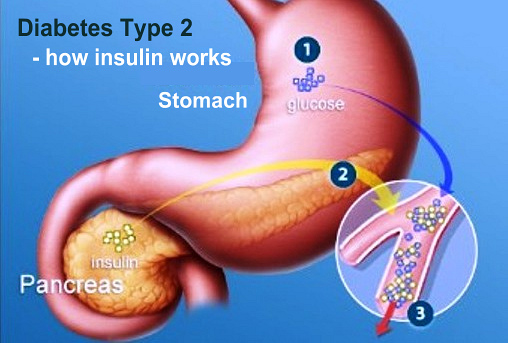 Type 2 Diabetes - How Insulin Works