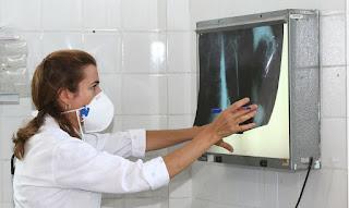Brasil registra 200 casos de tuberculose por dia.