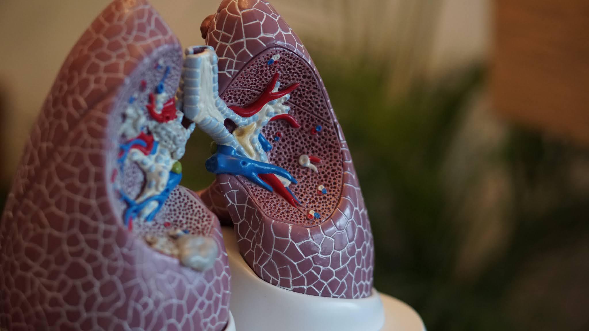 هل فحص سرطان الرئة ضروري؟
