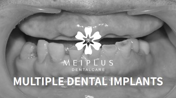 Full Mouth, Multiple Dental Implants Procedure