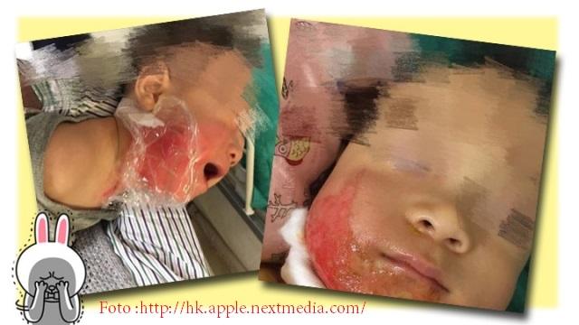 Seorang TKW Ditahan Polisi Karena Teledor Sebabkan Bayi 15 Bulan Tersiram Air Panas
