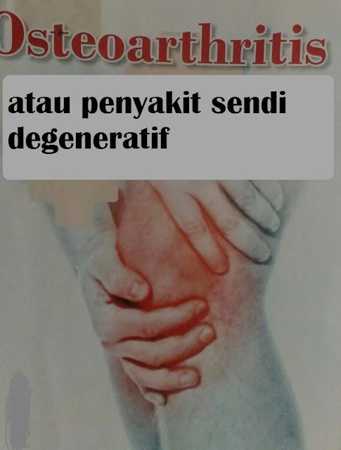 Osteoarthritis, gejala,pencegahan dan cara pengobatannya yang tepat