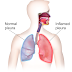 Pleurisy Is The Pain Of hitting With a sharp Knife | Causes