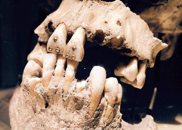 El cráneo alargado poseía incrustaciones de pirita en algunos dientes. Una demostración de los avanzados conocimientos en las antiguas civilizaciones.