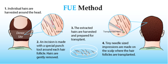 FUE – Follicular Unit Extraction Hair Transplants
