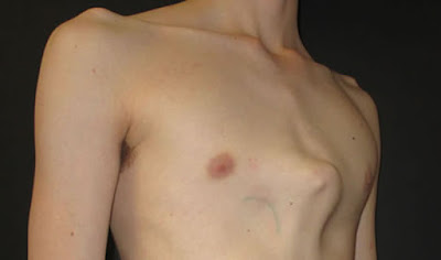 Pigeon Chest Images, Symptoms, Causes, Brace, Treatment