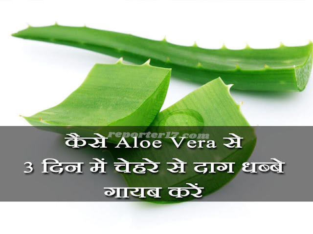 How to remove Pimples Marks with using Aloe Vera