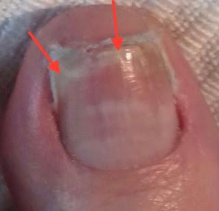 Nagel löst sich nach Quetschung Verletzung Fußnagelpilz, Jenn Cosmetic.