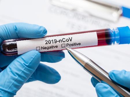 Sobe para cinco o número de casos suspeitos de coronavírus em Grossos