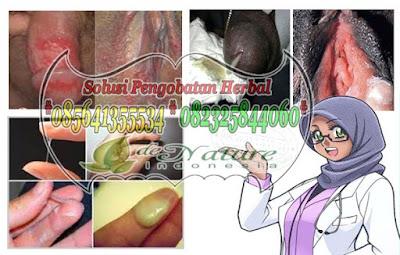 Cara Mengobati Sifilis Pada Ibu Hamil