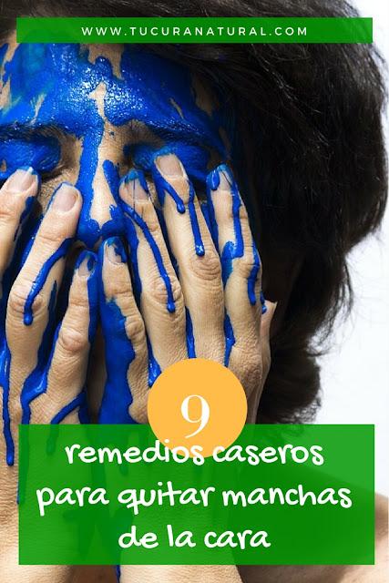 remedios caseros para quitar manchas de la cara
