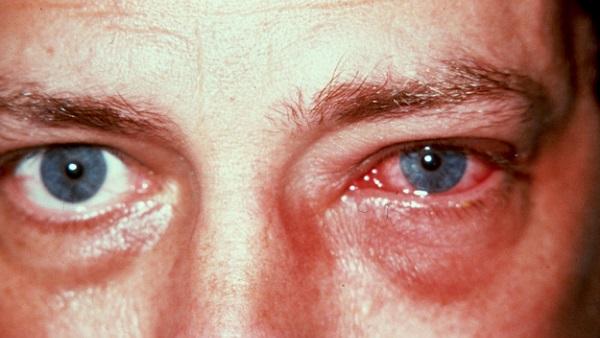 سعر ودواعي استعمال قطرة بريمونوكوند Brimonocond للعين