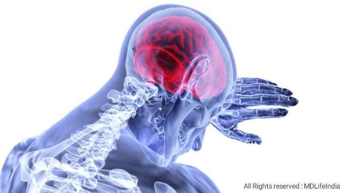 Stroke | Stroke symptoms | Types of stroke | Stroke causes and prevention | Treatment : MDLifeIndia