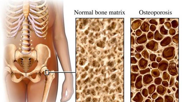 Cegah osteoporosis Sejak Dini! BEGINI Caranya! Jangan Sampai kamu Menyesal di Kemudian Hari!