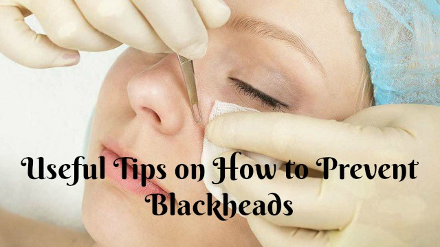Useful Tips on How to Prevent Blackheads