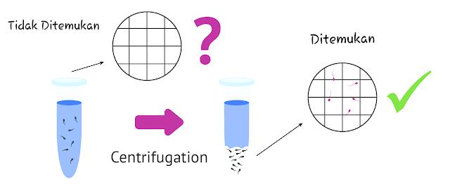 Cryptozoospermia : Ditemukan sperma setelah centrifugantion