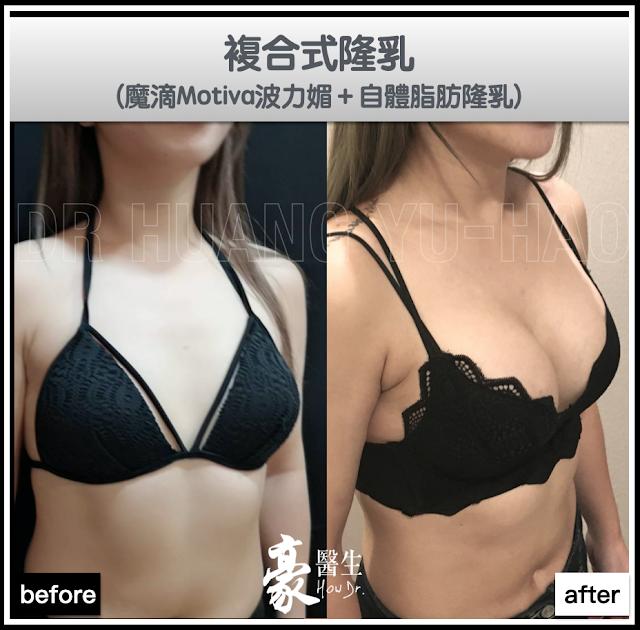 複合式魔滴隆乳案例分享:Motiva波力媚+自體脂肪隆乳