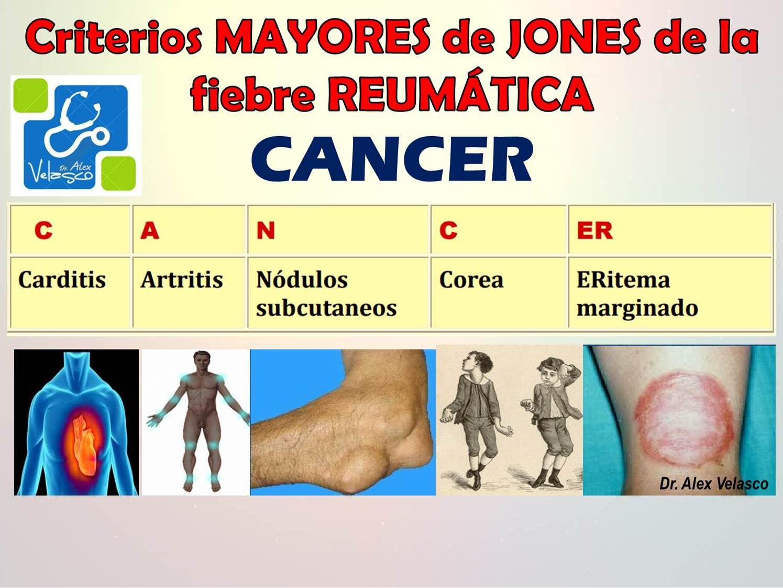 Encantador Mnemotécnico Para La Anatomía Ornamento - Anatomía y ...