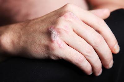 Tratamiento Biologico Para la Psoriasis