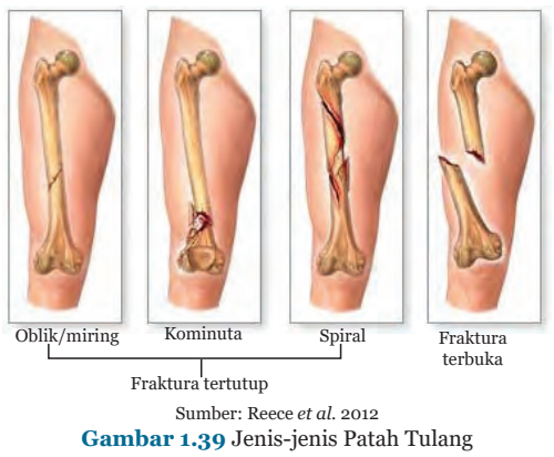 Gambar 1.39 Jenis-jenis Patah Tulang