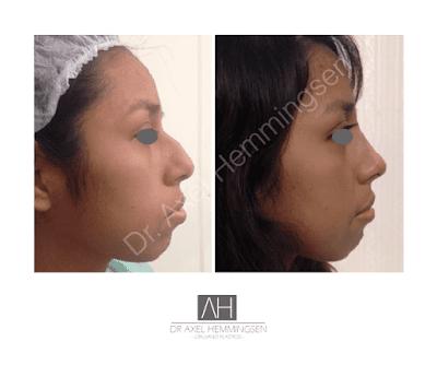 Cirugia de Nariz Procedimiento