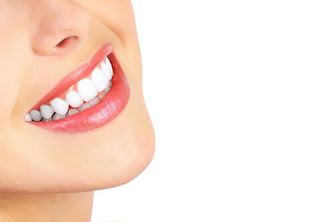 How to whiten teeth at home (the best proven natural recipes - laser)