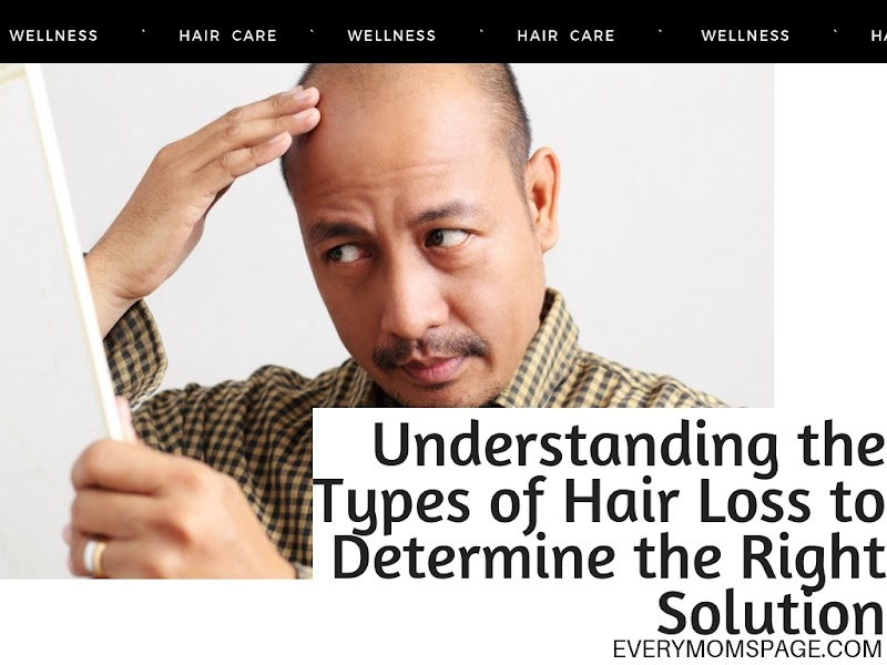 Understanding the Types of Hair Loss to Determine the Right Solution