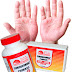Psoriasis Tablets