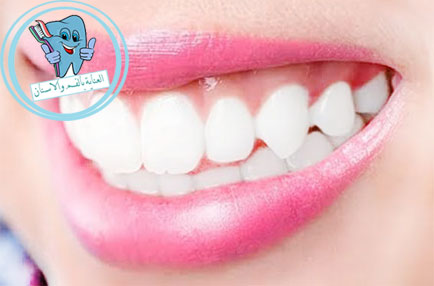 تبيض الاسنان الصفراء طبيعيا