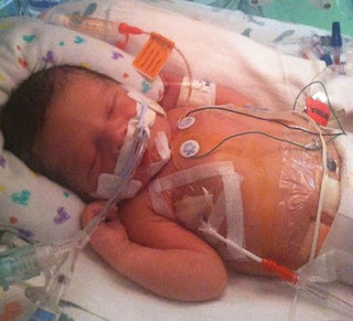Management of an infant with potter's syndromepotter's syndrome images